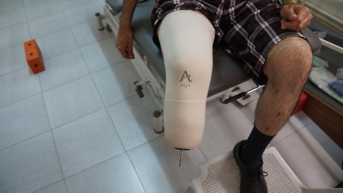 3D prothese: een veelbelovende technologische vooruitgang