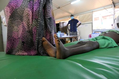 Soudan du Sud : Deux décès dus à l'hépatite E dans le camp de personnes déplacées de Bentiu