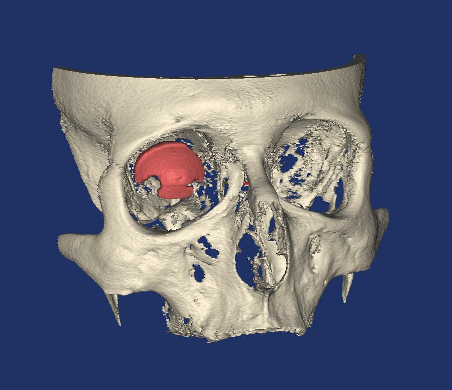 3d-ontwerp van de oogholte in de oogkas