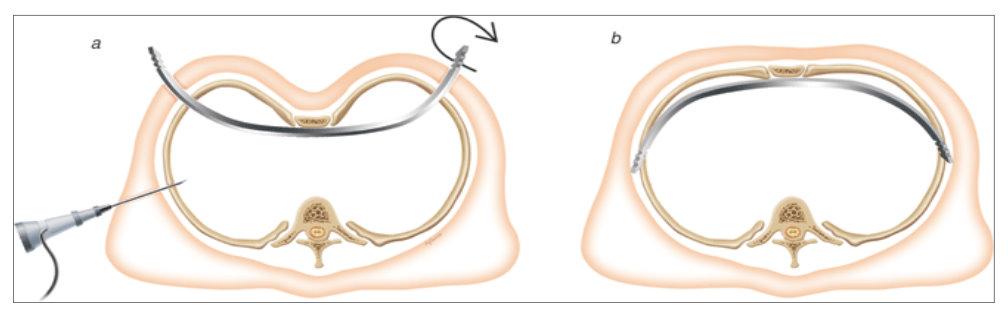 Tijdens de Nuss-operatie wordt een metalen staaf ingeplant, die het borstbeen naar voren duwt.