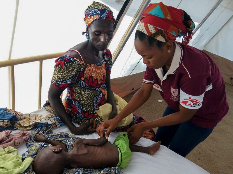 국경없는의사회 소속 의사가 나이지리아 보르노 주의 한 영양실조 아동을 치료하고 있다.   ⓒMSF