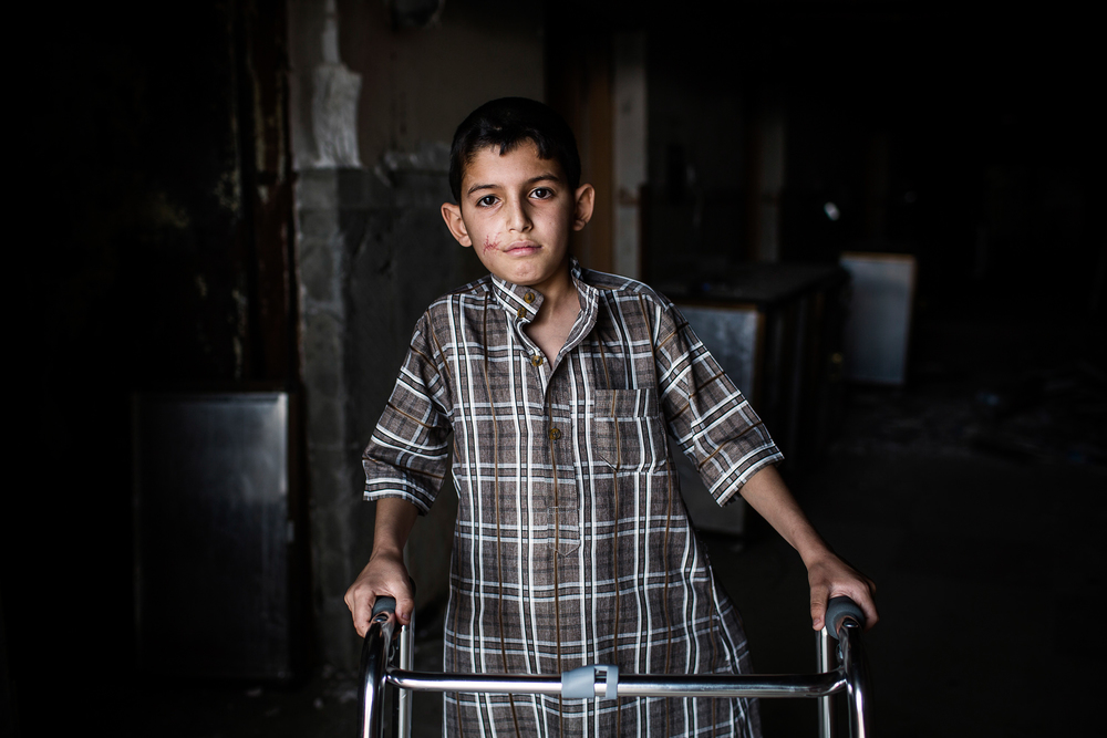 A Portrait of 11 year old Mohamed from West Mosul at the Medecins Sans Frontieres (MSF) Post-op hospital south of Mosul, Iraq. April 8th, 2017. Photographer: Diego Ibarra Sánchez/MEMO