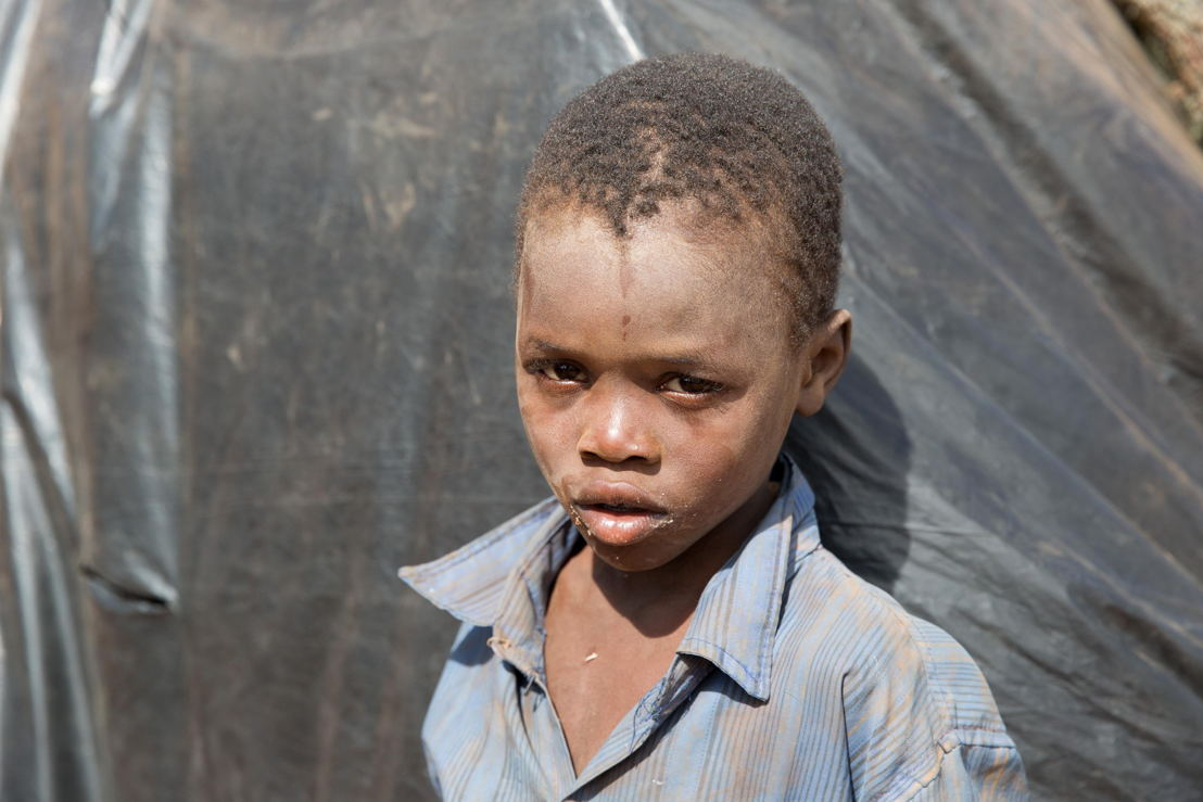 Portrait of a child who is one of over 5.800 Mozambican nationals have camped in the village of Kapise 2 in Malawi after fleeing their homes in Mozambique, the majority of them women, children and the elderly. © James Oatway / MSF