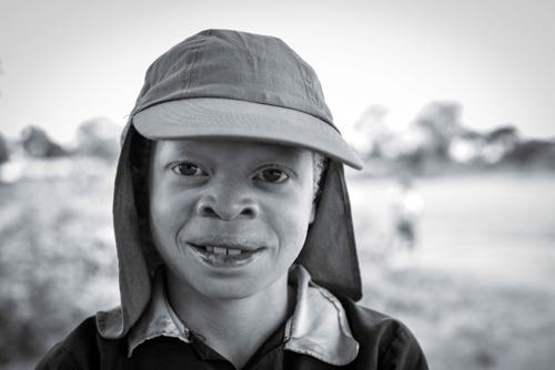 VUB research on albinism in Tanzania