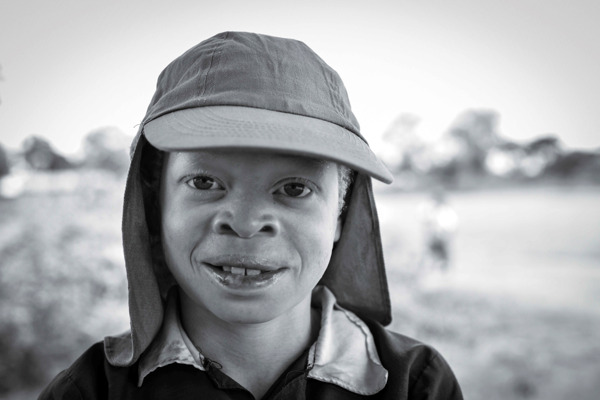 Preview: VUB research on albinism in Tanzania