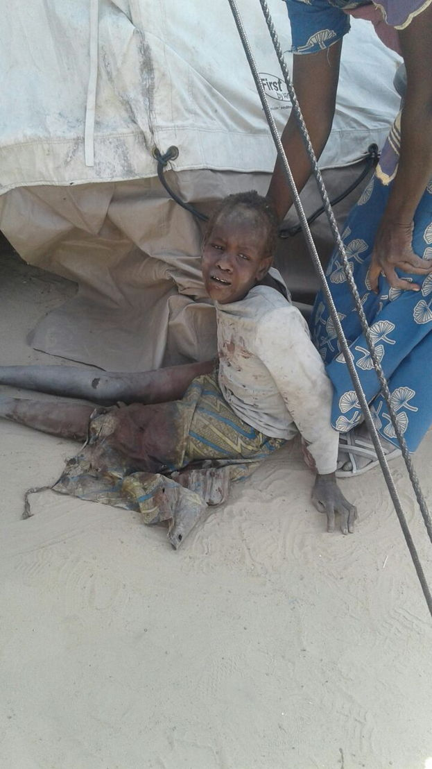 A bombing by the Nigerian Army has occurred in an internally displaced person camps in Rann, Nigeria. MSF teams have seen 120 wounded and at least 50 dead following the bombing. Teams are trying to provide emergency first aid in its facility and are stabilizing patients to evacuate wounded. We are asking the authorities to put all measures in place in order to facilitate the emergency evacuation of wounded (by air and land). Our medical and surgical teams in Cameroon and Chad are ready to treat wounded patients. Photographer: MSF
