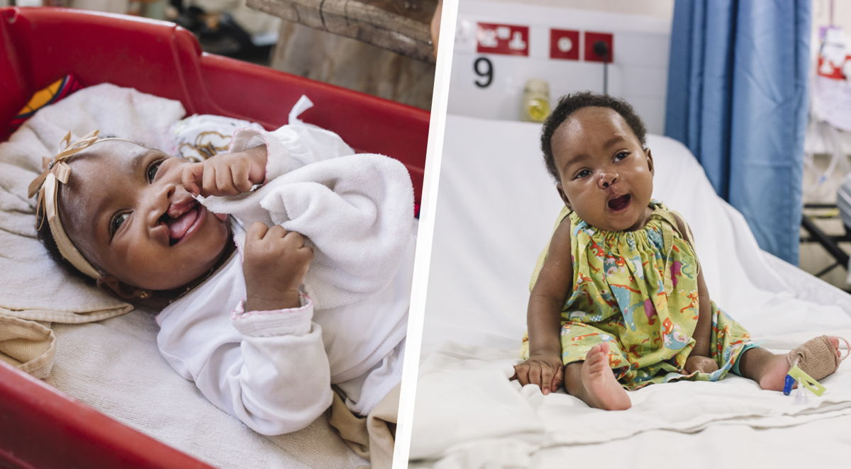 Before and after photos of Aissata's cleft lip surgery.