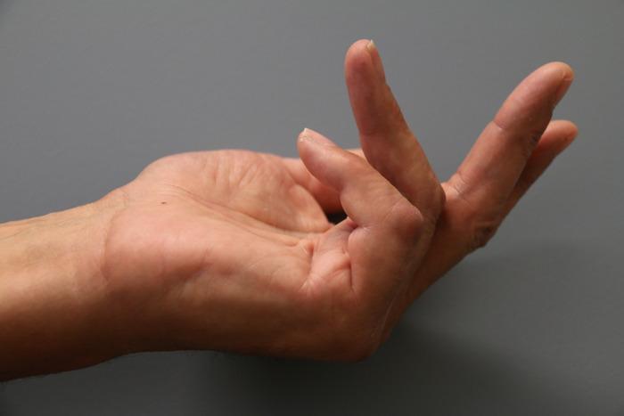Geneesmiddel dat complexe handchirurgie kan vermijden niet meer beschikbaar in België
