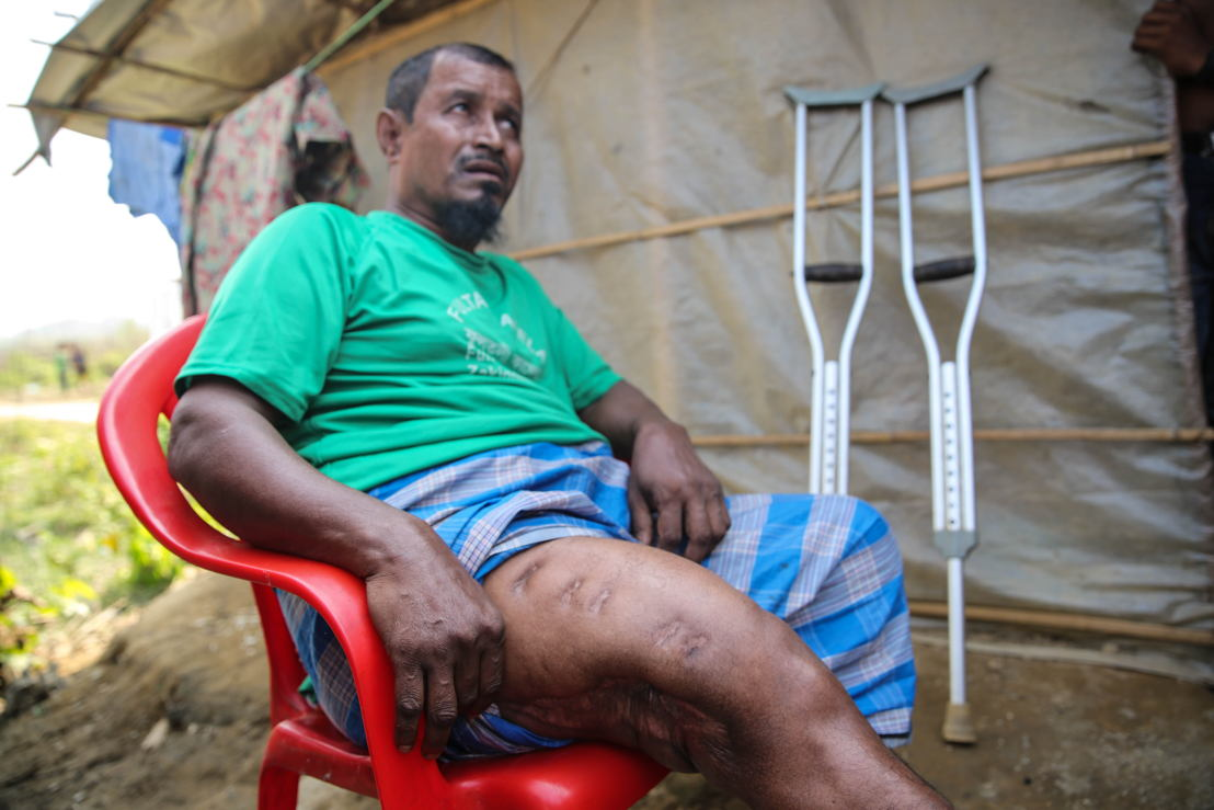 Tasnimarkhola camp: Rohingya refugee Mohammad Younis, 60, was shot by the Myanmar army in 2016. Credit: Mohammad Ghannam/MSF