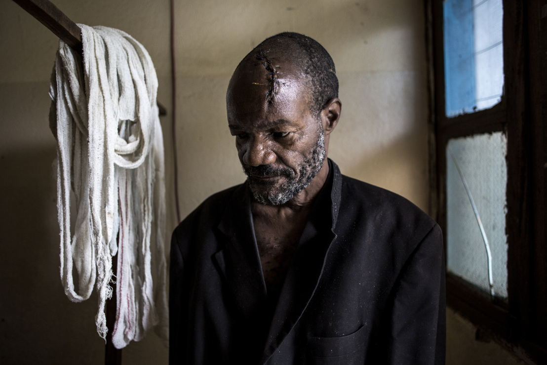 Bawma Yoame (56), recovers in a hospital room on 2 March 2018 in Bunia, after an attack on his village left him severely wounded with multiple lacerations to the head. ©John Wessels/MSF