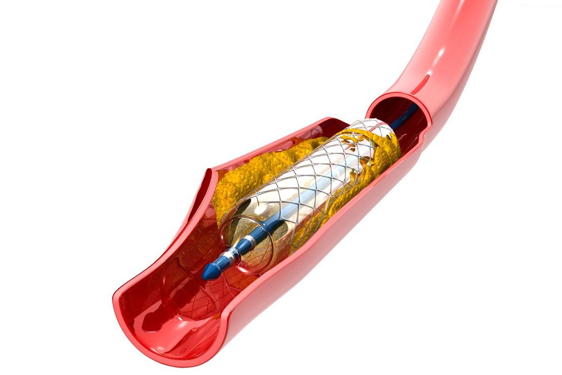 Een stent in een bloedvat/ Copyright Shutterstock