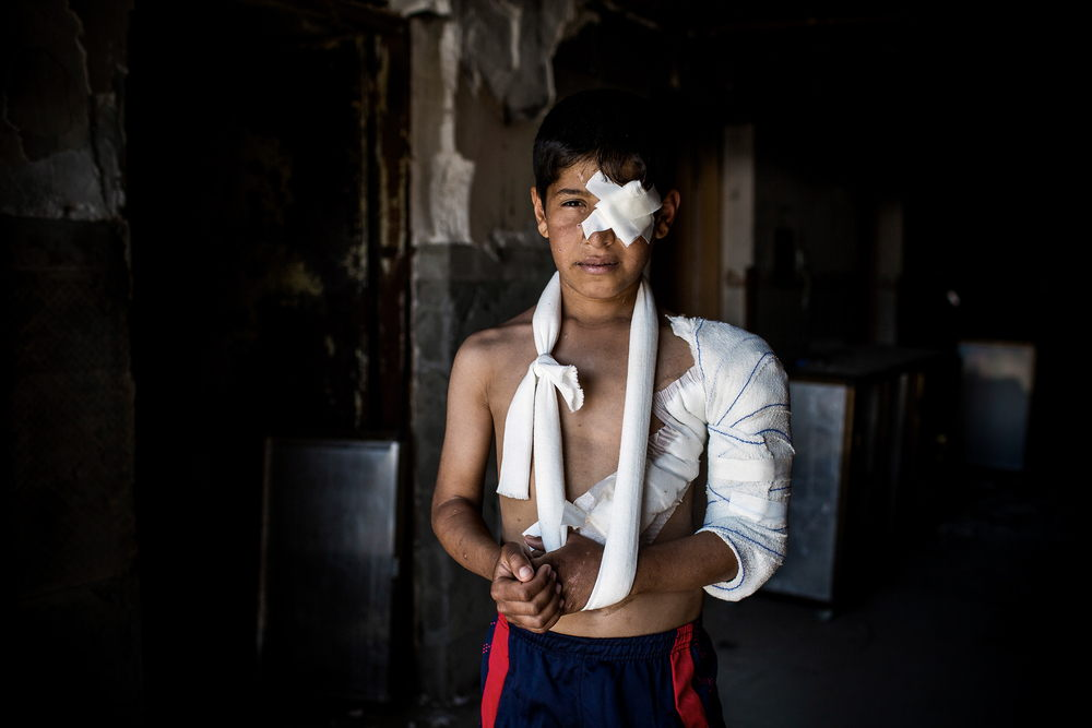 """Portrait of 11 year old Abdulrahman. at the Medecins Sans Frontieres (MSF) Post-op hospital, south of Mosul, Iraq. <br/><br/>""""I was going to a food distribution when something exploded in the street next to me. I was hit in the chest and arm by shrapnel. First I was treated in a medical post in Aqrab. From there they referred me to MSF in Hammam Al Alil. Then I passed through many hospitals before I came to Hamdanyia. I have been here for a week now. My family is in Hay Maoumon, a liberated area of West Mosul. Photographer: Diego Ibarra Sánchez/MEMO"""