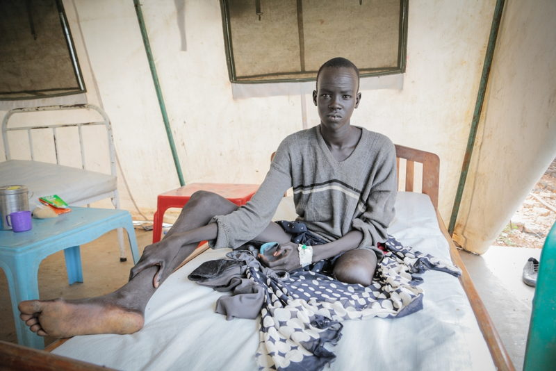 Banywich Bone, 18 ans, was reffered to Agok From Mayom, where MSF runs a primary health center. He was bitten by a snake three years ago, while he was sleeping at home. When he arrived in the hospital, he presented an infected wound for which doctors blame the snake bite. His left leg had necrotic tissus and pain, the wound was infected and MSF surgeon had to amputate the leg above the knee. Photographer: Pierre-Yves Bernard