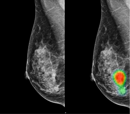 AI-assisted Radiologists Can Detect More Breast Cancer with Reduced False-positive Recall
