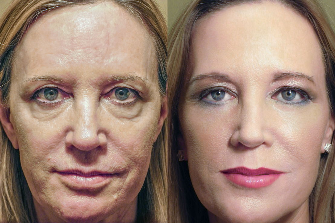RESET patient before and after surgery with make-up.