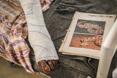 MORDEDURAS DE SERPIENTE: Es clave ampliar el acceso a antídotos y mejorar las herramientas frente una crisis que afecta, sobre todo, a la población rural pobre