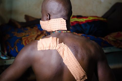 Zentralafrikanische Republik: Nach Angriff auf Spital stellt MSF die Tätigkeit vorübergehend ein