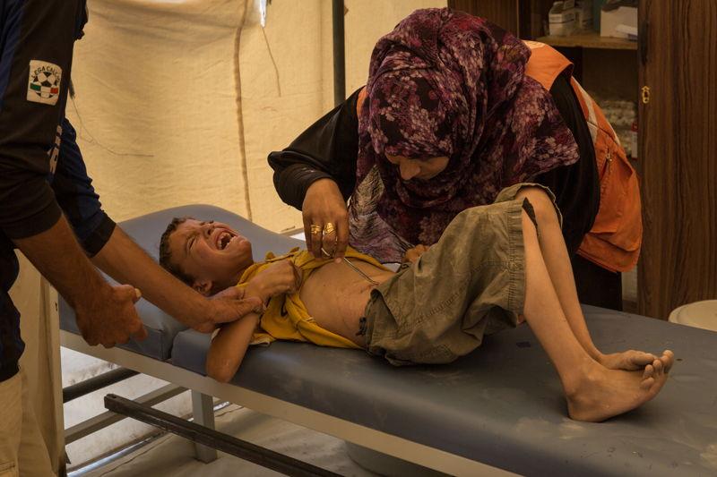 Juillet 2017 - Syrie - Rojava - Syrie du Nord - Camp de déplacés d&#039;Aïn Issa / Clinique MSF / Un jeune syrien venu de Raqqa se fait enlever des points de suture avec difficulté.<br/>Chris Hubby