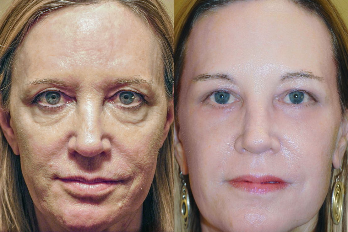 RESET patient before and after surgery; no make-up.