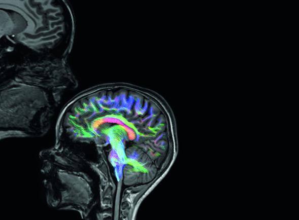 Kanker tijdens zwangerschap heeft geen ernstige impact op hersenontwikkeling van het kind