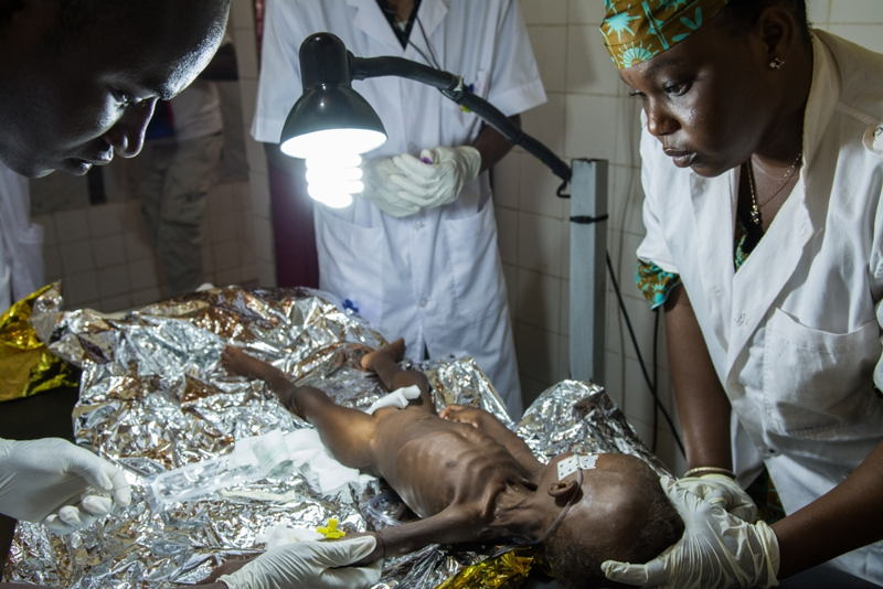 Health workers examine a child with suspected malnutrition and malaria in an MSF-supported hospital in the Magaria region in southern Niger. The rainy season corresponds to the lean season, so malaria and malnutrition peaks coincide. For children in particular, this period of the year represents a real fight for survival. Photographer: Louise Annaud/MSF