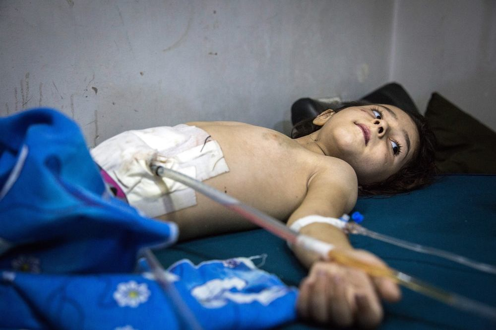 A five-year-old child recovers from surgery to his abdomen after being hit by shrapnel in an airstrike on Al Sukkari neighbourhood in east Aleppo. Photographer: KARAM ALMASRI
