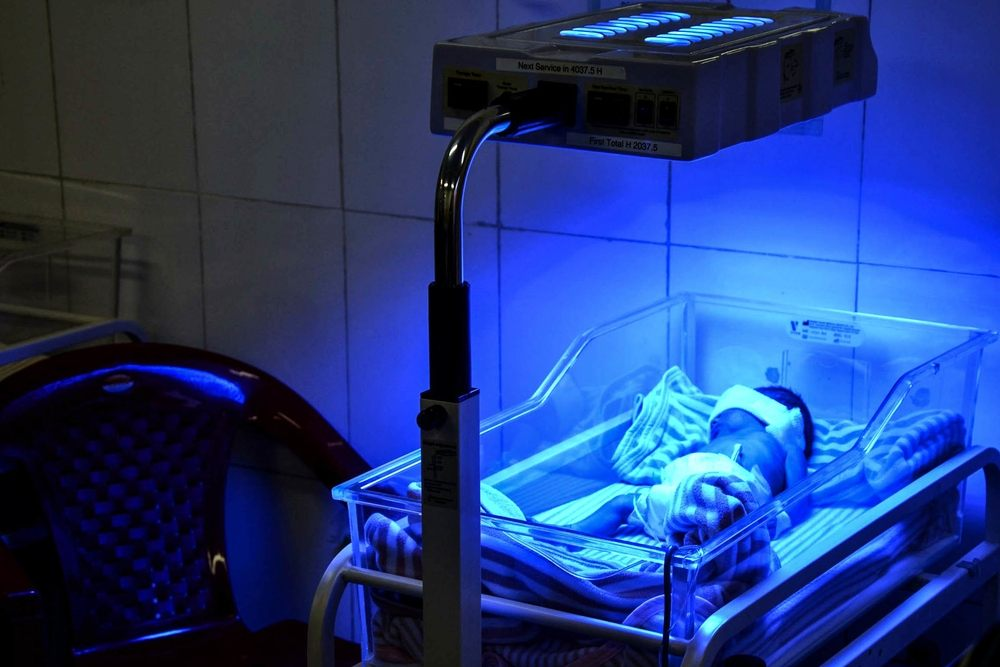 Jaundice is a complication that can affect newborns, but can be treated by exposure to Ultra-Violet (UV) light under a phototherapy lamp. Photographer: Kate Stegeman/MSF