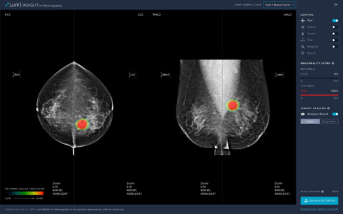 Lunit INSIGHT MMG, an AI Solution for Breast Cancer Detection, Now CE Certified
