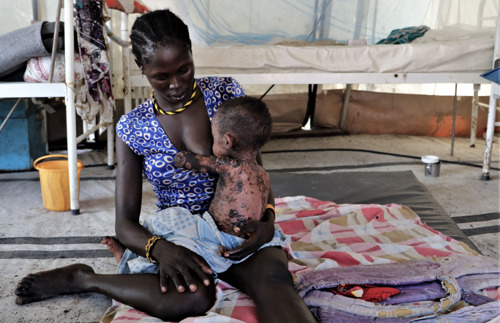 South Sudan: Urgent vaccination campaign needed to stop spread of measles