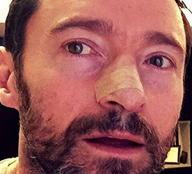 Preview: How Hugh Jackman and Others Could Prevent Future Skin Cancers
