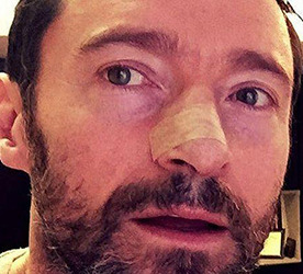 How Hugh Jackman and Others Could Prevent Skin Cancers