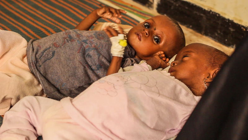 Kholah and Saher were malnurished and dehidrated. Once in hospital they were fed milk, as they hovered between life and death. Photographer: MSF