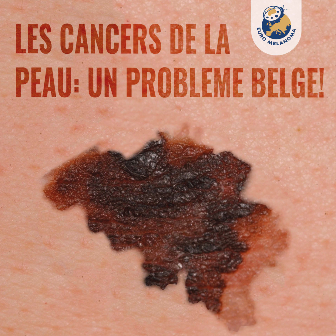 Les tumeurs malignes de la peau augmentent chaque année de 5 à 9 %