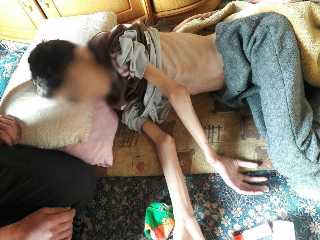Mohammed, 17, stierf aan ondervoeding 2 dagen nadat deze foto genomen werd. Hij was al vijf maanden in behandeling wegens een fysiek trauma met neurologische gevolgen, maar door gebrek aan het nodige medische materiaal en voedsel kon hij niet genezen. Hij raakte steeds sterker ondervoed en verzwakte, tot hij op 4 april overleed. © AZG. 2 april 2015, Madaya.