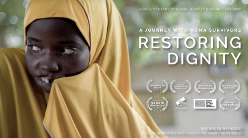 Invitation to the UK Premiere of 'Restoring Dignity: A Journey with Noma Survivors'