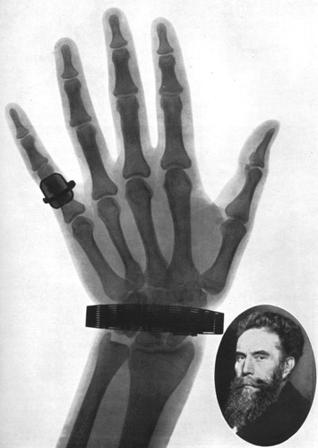Discovery of the X Ray