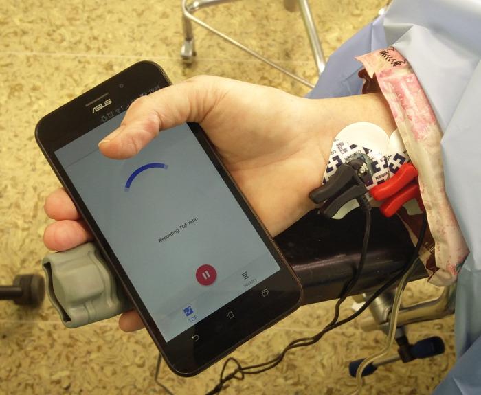 Onderzoekers van UZ Brussel ontwikkelen app om spierslapte tijdens ingrepen te monitoren