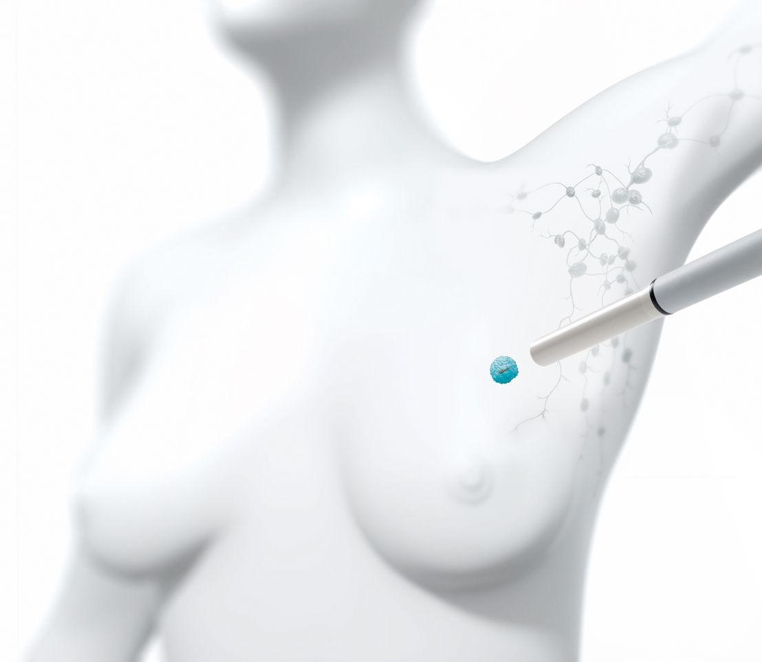 Een instrument met magnetisch veld spoort het  zaadje in de niet-voelbare borsttumor op