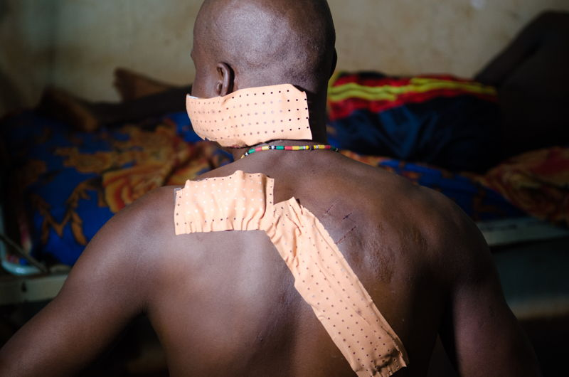Dieudonné R. was living in Gambo when the fighting broke out. He was attacked by fighters with machetes and was left for dead. He escaped and managed to reach Bangassou hospital, 75km away with help of local villagers. It took him two days. Photographer: Natacha Buhler