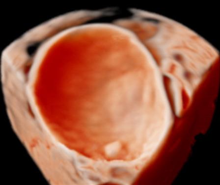 Ingreep bij goedaardige eierstoktumoren niet altijd nodig