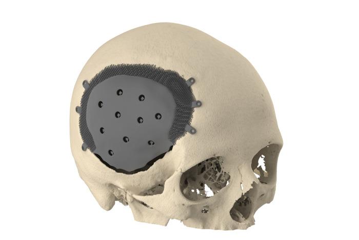Doorbraak: nieuw 3D-geprint titanium implantaat helpt schedelgaten voortaan beter te herstellen
