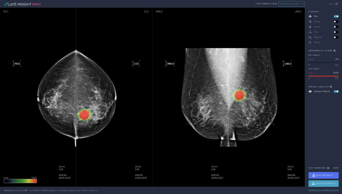 ▲ Lunit INSIGHT MMG, AI solution for breast cancer detection from mammograms