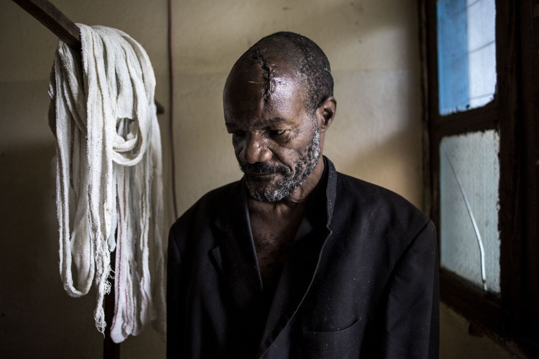 Bawma Yoame (56), recovers in a hospital room on 2 March 2018 in Bunia, after an attack on his village left him severely wounded with multiple lacerations to the head. Fighting in Ituri province has left thousands of Congolese displaced and some 100 have lost their lives. PHOTO/JOHN WESSELS