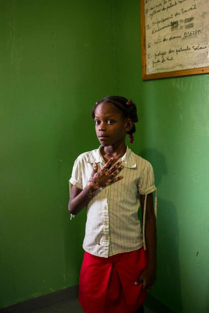 Fedia Fontenel, aged nine, burnt her hand in the kitchen of her home in Mariani. Three times a week she meets with Josue Toussaint, an MSF social worker, for physiotherapy at the burns unit in Drouillard hospital, Port-au-Prince. Photographer: Corentin Fohlen