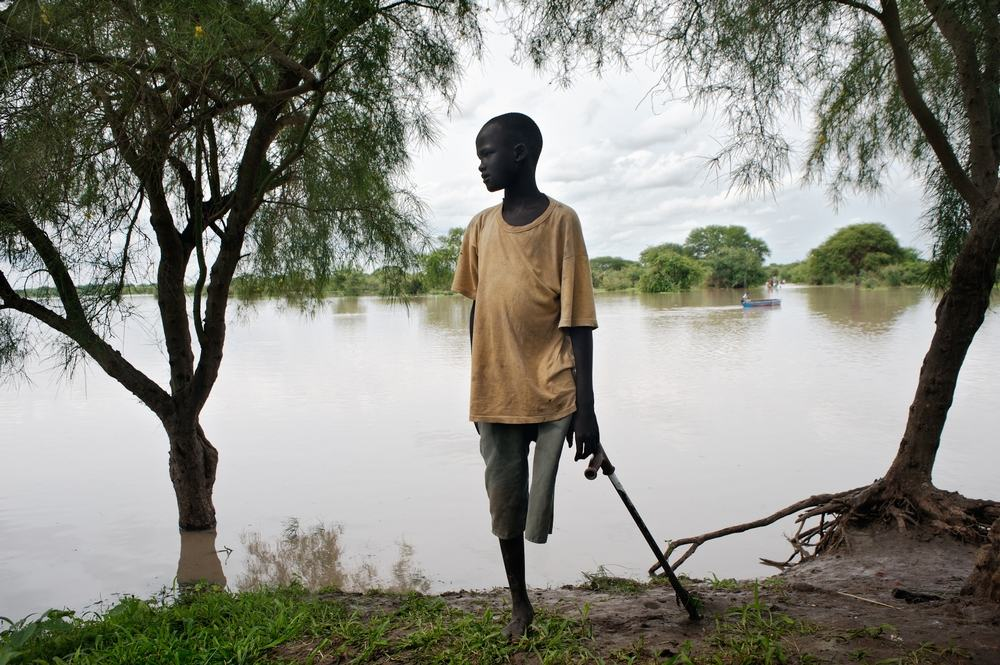 A boy, with an amputated leg due to lack of access to care after being bitten by a snake, on the banks of the Pibor River in Jonglei State. Up to 75 per cent of people cannot access even the most basic healthcare in South Sudan. Apart from a small Ministry of Health facility in Pibor town, MSF is the only primary healthcare provider for over 160,000 people in this part of Jonglei State. Photographer: Cédric Gerbehaye