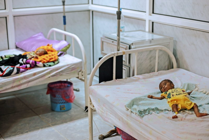 Eight-month-old Ayashi Ibrahim lies on a bed in Al Thawra hospital, Hodeidah, Yemen, suffering from severe acute malnutrition, which is life-threatening. The conflict in Yemen has caused severe food shortages, and this is the second time Ayashi has been admitted to the hospital's malnutrition centre. Photographer: Rawan Shaif