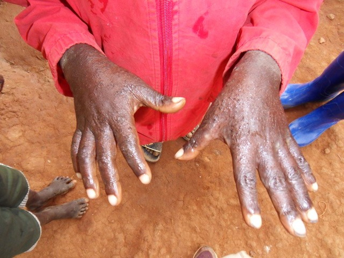 Treating scabies – a forgotten disease in a forgotten corner of the world