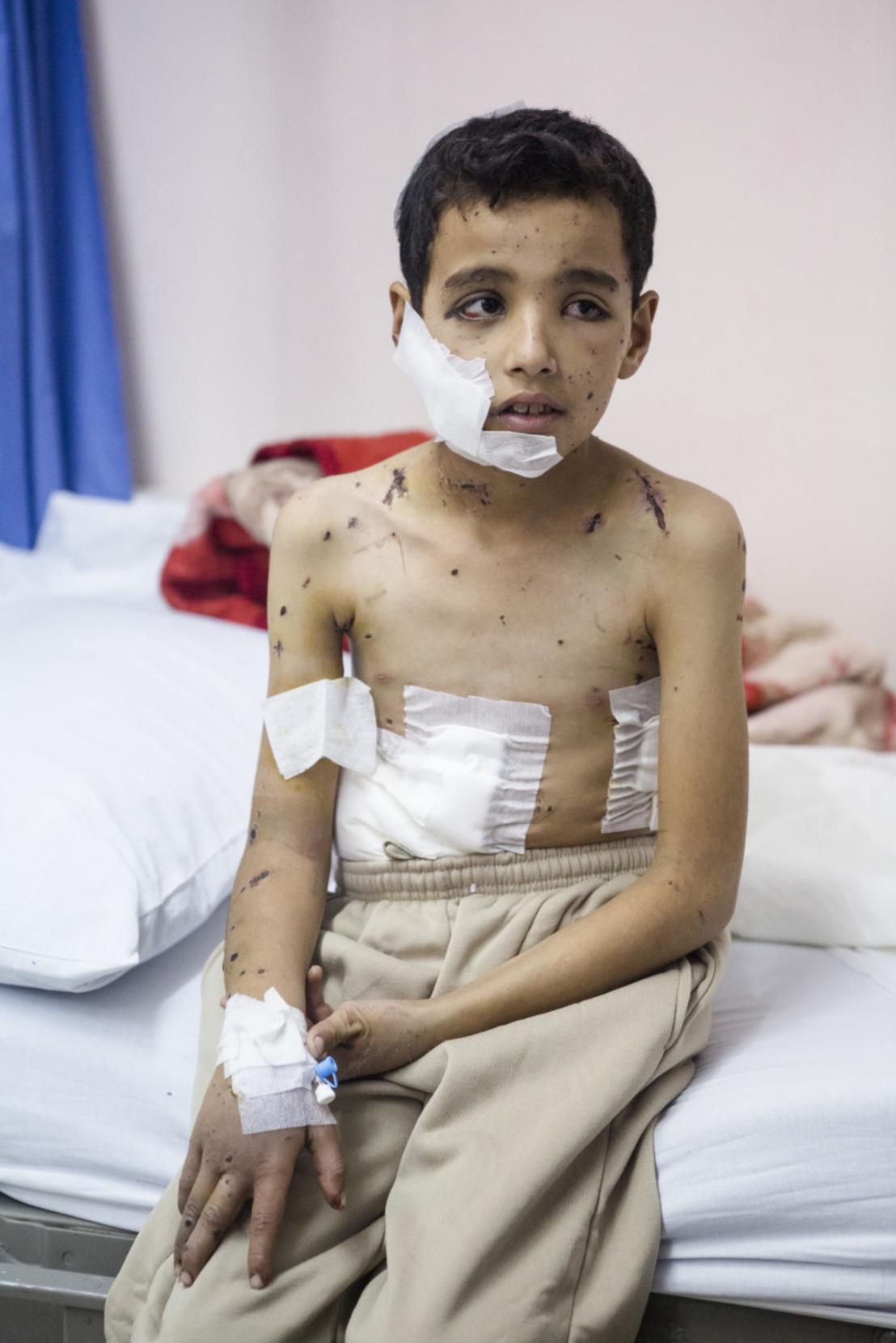 7 jaar conflict in Syrië: een aanval elke 15 minuten