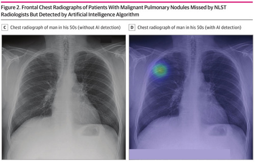 AI Analysis Can Improve Lung Cancer Detection on Chest Radiographs