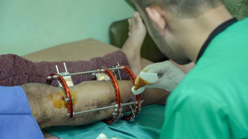 Gaza: un an après le début de la marche du retour, des milliers de blessés au désespoir